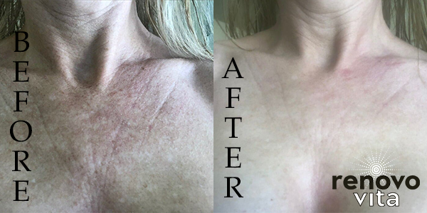 Before and after Virg-N youth serum
